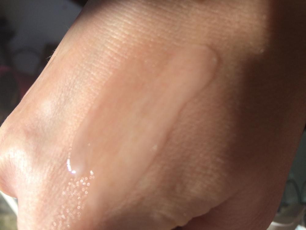 Не увлажненная кожа может быть жирной