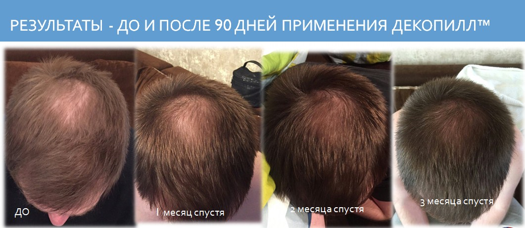 Как быстро отрастить волосы у мужчины в домашних условиях